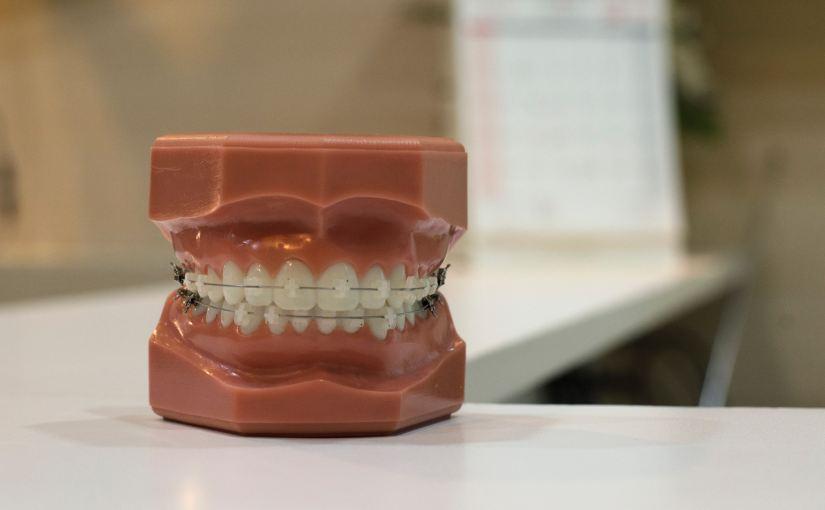 Operadora de plano odontológico é condenada por falha profissional dedentista